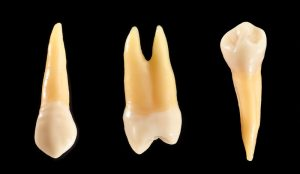 A link between periodontitis and Alzheimer's?