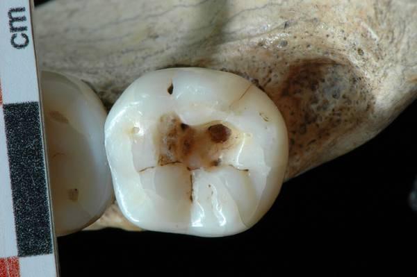 Paleolithic dentistry