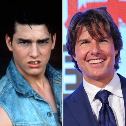 tom cruise hollywood smiles