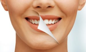 Teeth Whitening facts you should know