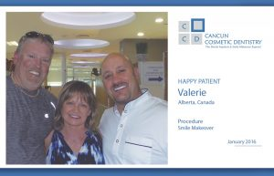 Great case of Smile Makeover in Cancun!