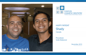 Another great case of smile makeover with dental crowns!