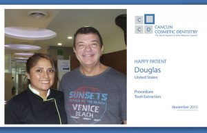Happy Patient solved his dental problem during his vacation in Cancun!