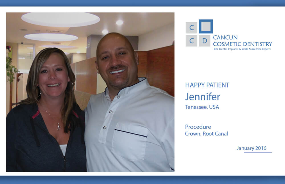 One more Happy Patient in Cancun Cosmetic Dentistry!