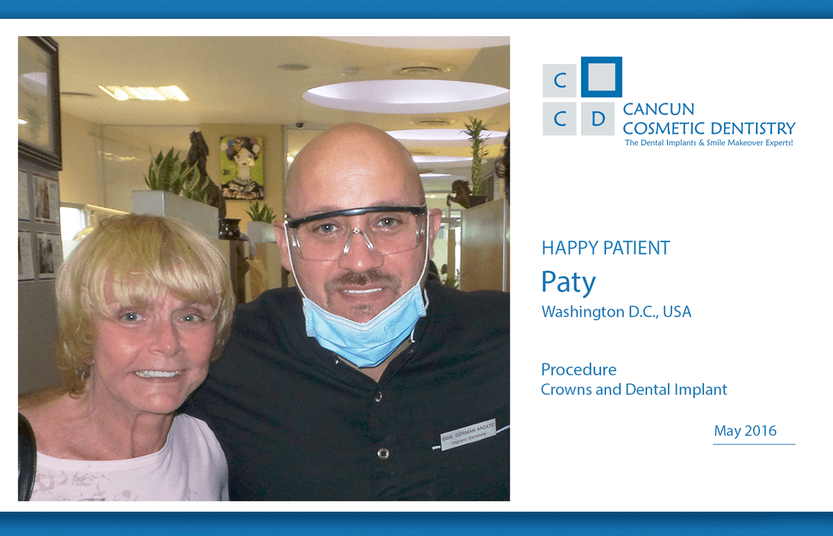 Affordable porcelain crowns and dental implants in Cancun