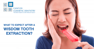 What can you expect after a wisdom tooth extraction?