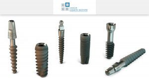 The 5 most common misconceptions about dental implants