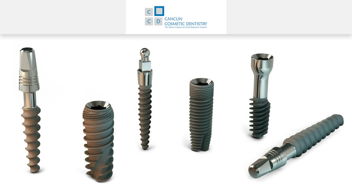 Different types of Dental Implants in Cancun Cosmetic Dentistry!