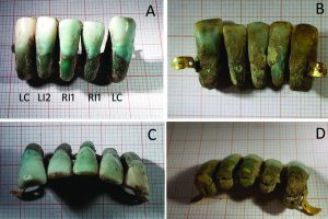 The oldest denture in the world has been found in Italy!