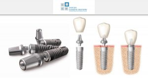 How safe are dental implants? – Cancun Cosmetic Dentistry