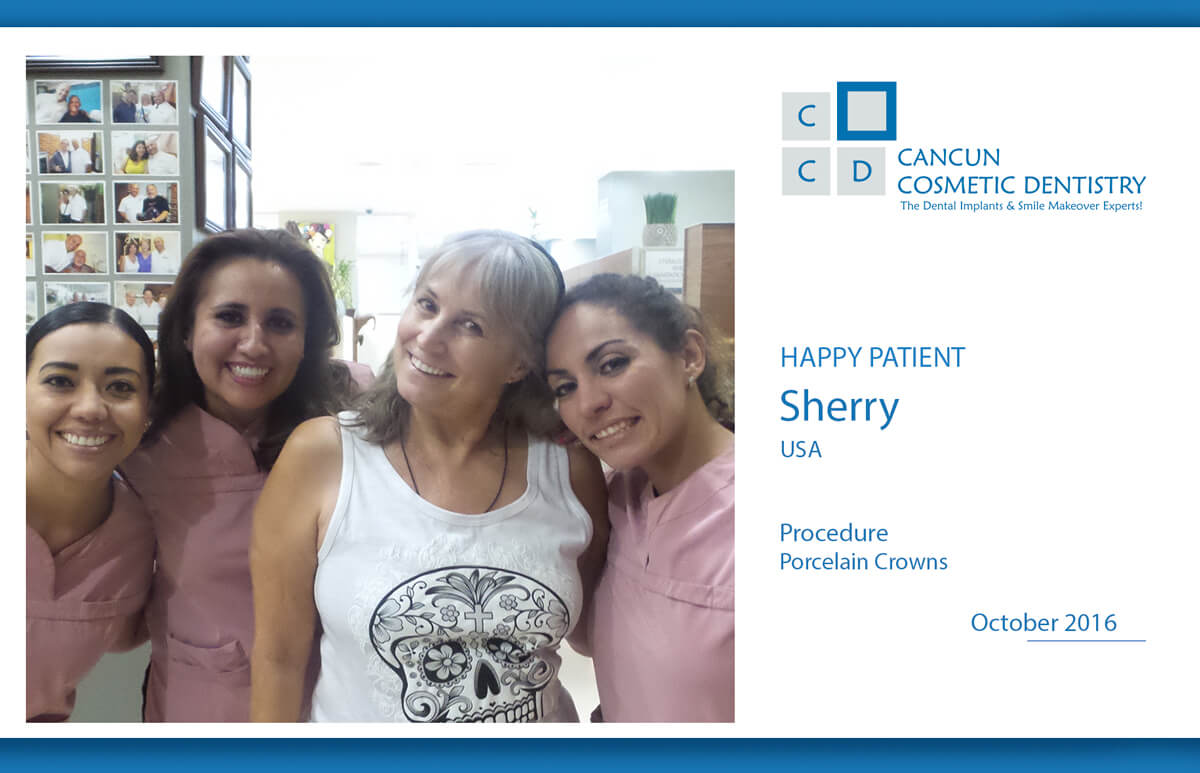 Affordable porcelain crowns in Cancun