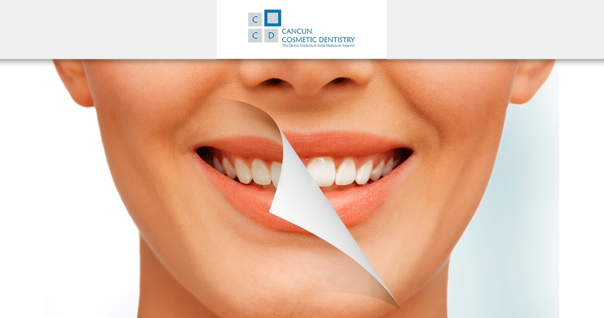 Facts you didn't know about teeth whitening! – Cancun Cosmetic Dentistry