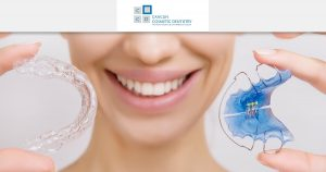What are dental retainers? – Orthodontist in Cancun Cosmetic Dentistry