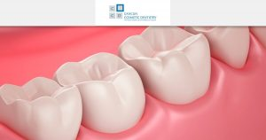 If you have periodontal disease, what should you do?