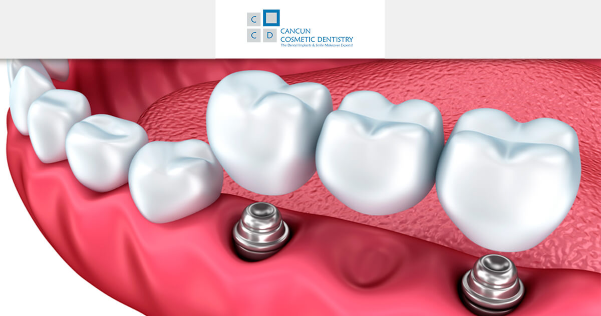 Dental Implant care and tips!