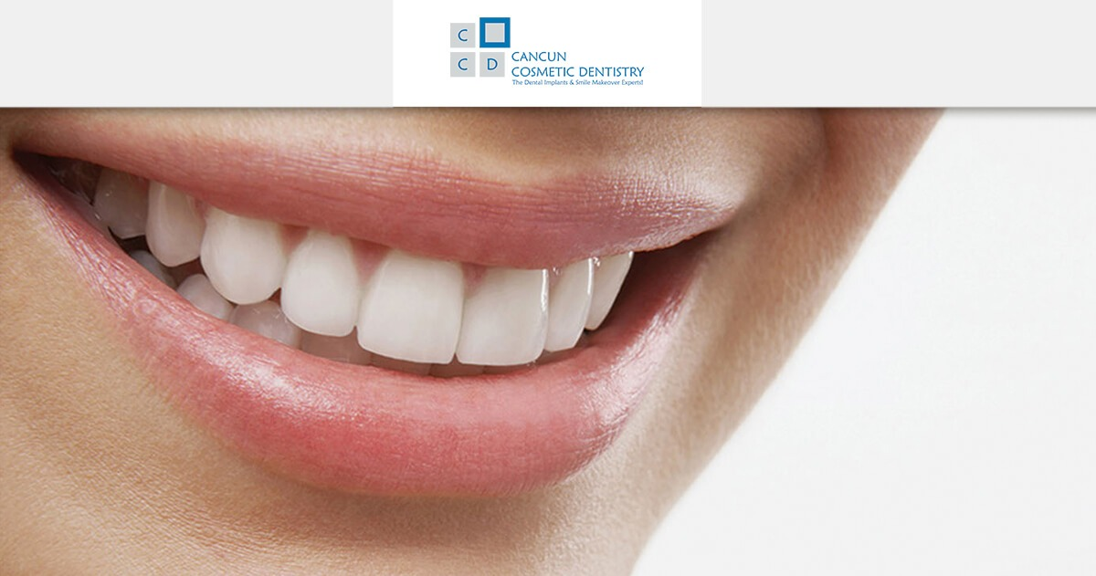 What is a dental restoration? – Cancun Cosmetic Dentistry