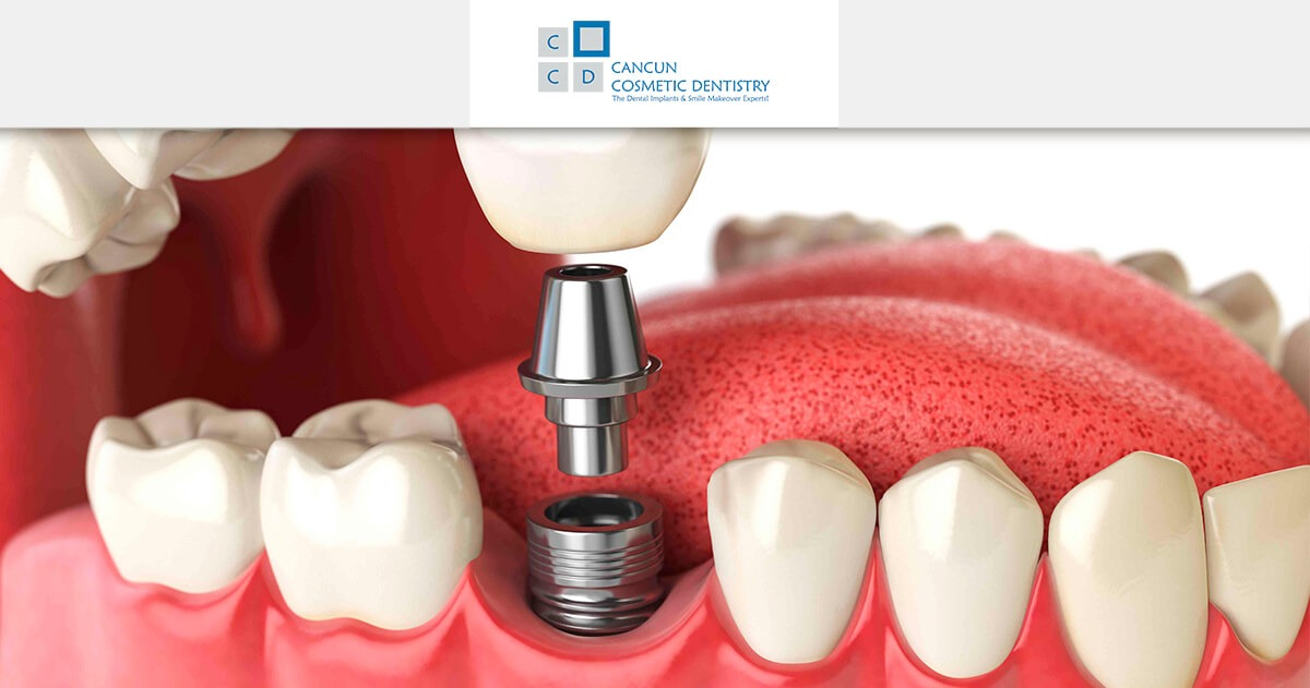 Dental implants or dental bridges for teeth in posterior area?