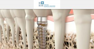 Do I need bone graft to get dental implants? – Cancun Cosmetic Dentistry