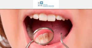 Get a dental cleaning in Cancun! It's quick and easy!