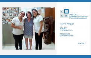 Snap in Denture happy patient in Cancun Cosmetic Dentistry