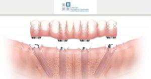 This is what you can expect when getting All-on-4 dental implants in Cancun!