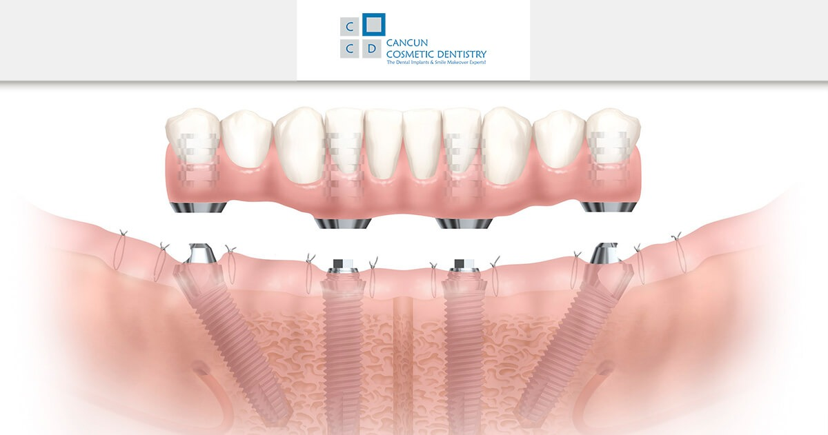 Improve your quality of life with All-on-4 implants