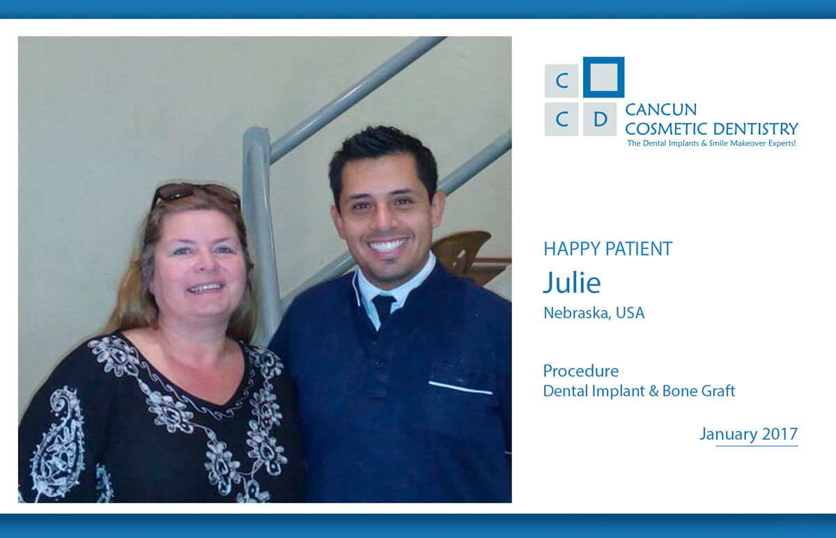 Affordable dental implants in Cancun Cosmetic Dentistry