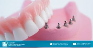 Mini implant dentures are the way to go! – Cancun Cosmetic Dentistry
