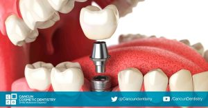 Mixed dental treatments for smile makeovers