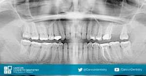 Get a Dental Diagnosis with the experts in Cancun Cosmetic Dentistry