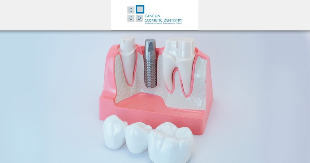 Dental Bridge vs Dental Implants? What's best for you?
