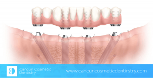 Full mouth restoration with All-on-4 or All-on-6 dental implants?