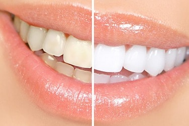 Laser_whitening_before_and_after