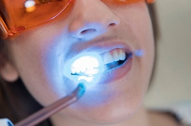 Laser_whitening_price_in_cancun