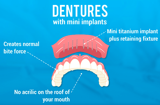 Mini_Implant_dentures_in_Cancun