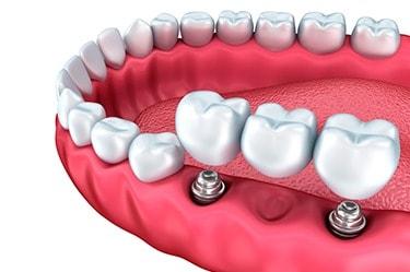 dental-implant-price-Cancun-3