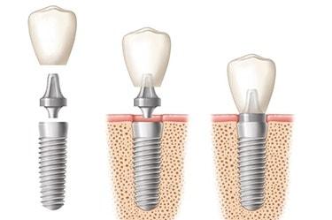 dental-implant-price-Cancun