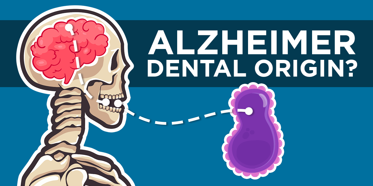 Are Alzheimer and Gum disease related? Study says YES.