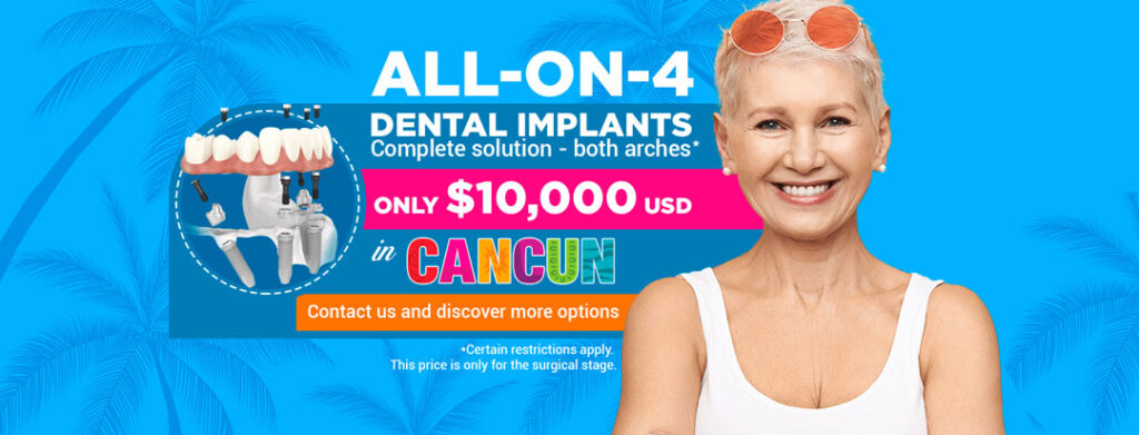 ALL-ON-4-10000 cancun cosemtic dentistry-banner-2021-1