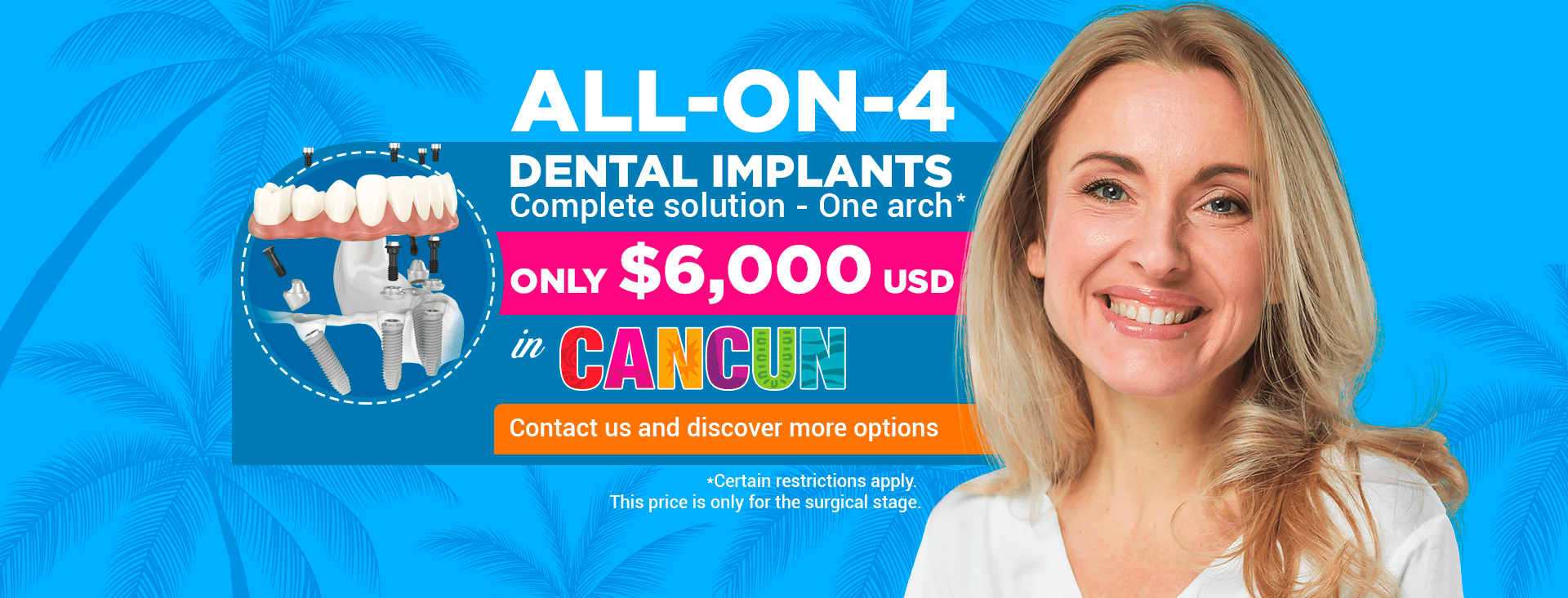 ALL-ON-4 starting at $6000 USD in Cancun Cosmetic Dentistry