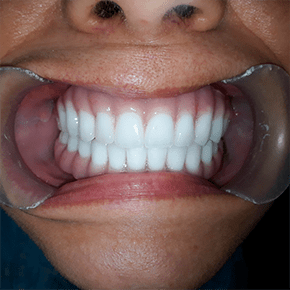 All-on-4-bad-teeth-cancun-cosmetic-dentistry-after-emely