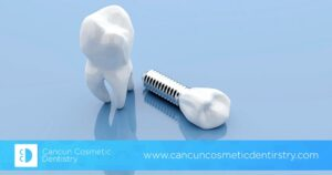 Are there any complications with dental implants? – Cancun Cosmetic Dentistry