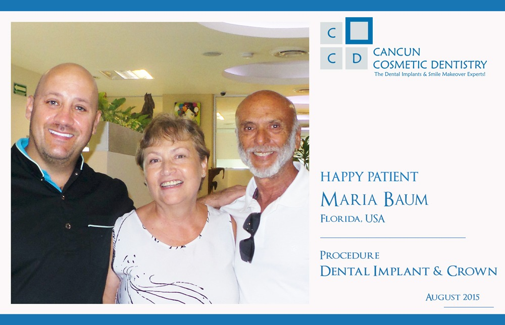 Dental Implant and Crown happy patient at our Dental Clinic in Cancun
