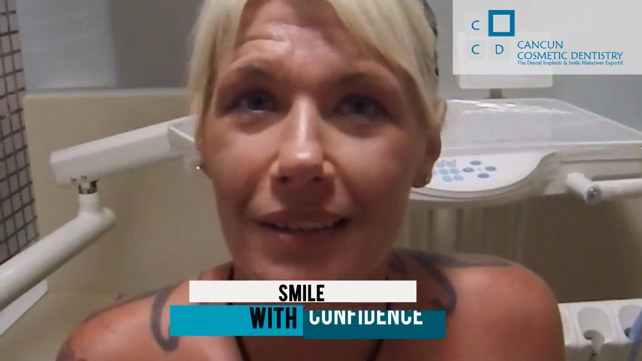Cancun cosmetic dentistry video reviews testimonial smile makeover dental implant crown bone graft dentistry (1)
