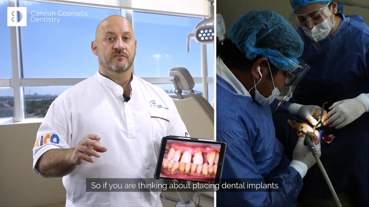 Cancun cosmetic dentistry video reviews youtube (1)