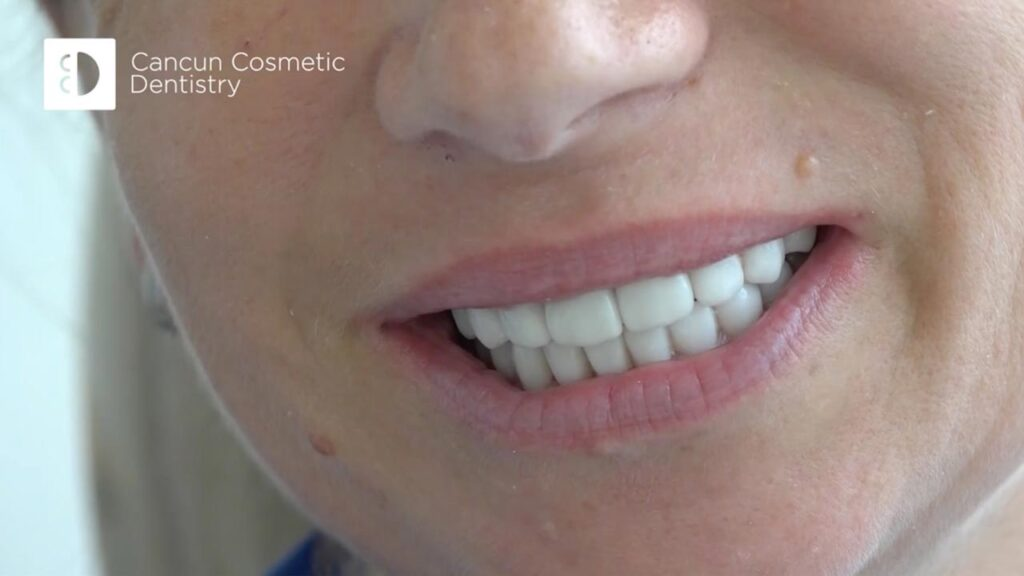 Cancun cosmetic dentistry video reviews youtube (12)