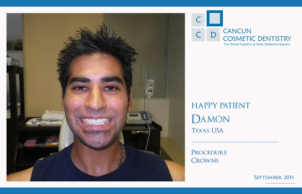 Happy Patient with affordable dentists in Cancun