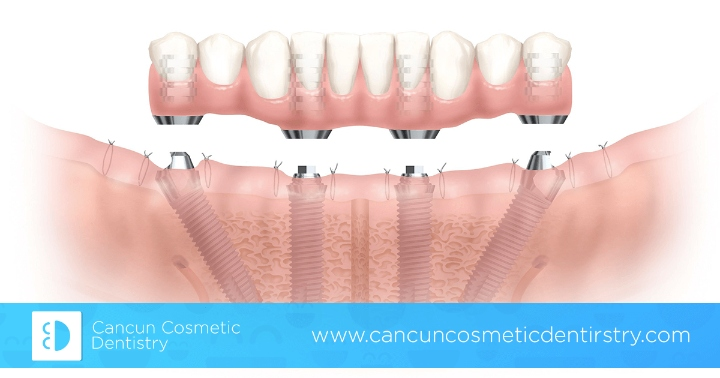 Full mouth restoration with All-on-4 or All-on-6 dental implants