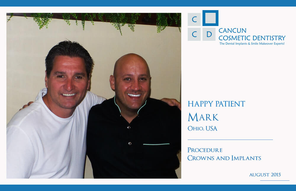 Cancun cosmetic dentistry patient Review