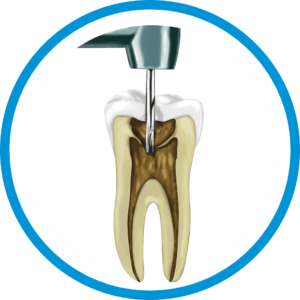 Root_Canal_in_Mexico_Price